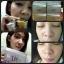 ชุดครีมมินโซว (mixnzol) thumbnail 4