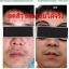 ชุดครีมมินโซว (mixnzol) thumbnail 20