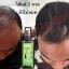 Neo Hair Lotion นีโอ แฮร์ โลชั่น ผลิตภัณฑ์สเปรย์ปลูกผมและบำรุงรากผม บอกลา ศีรษะล้าน ผมบาง ผมร่วง รังแค thumbnail 29