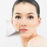 Acne care/รักษาสิว