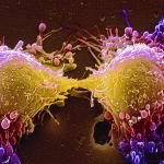 คิดถึงมะเร็งทีไร นึกถึงความตายทุกที