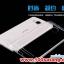 (370-018)เคสมือถือวีโว Vivo Xshot เคสนิ่มโปร่งใสแบบบางคลุมรอบตัวเครื่อง thumbnail 1