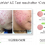 NutriVa AC For Acne นูทริว่า เอซี ฟอร์ แอคเน่ thumbnail 9