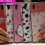 (440-062)เคสมือถือ Case OPPO R7/R7 Lite เคสนิ่มขอบสีพื้นหลังลายสวยๆน่ารักๆ thumbnail 1