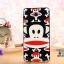 เคส Xiaomi Mi 4 - Cartoon silicone case[Pre-Order] thumbnail 10