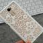 เคสมือถือ OPPO R7 Plus - Korea fashion hard Case [Pre-Order] thumbnail 13